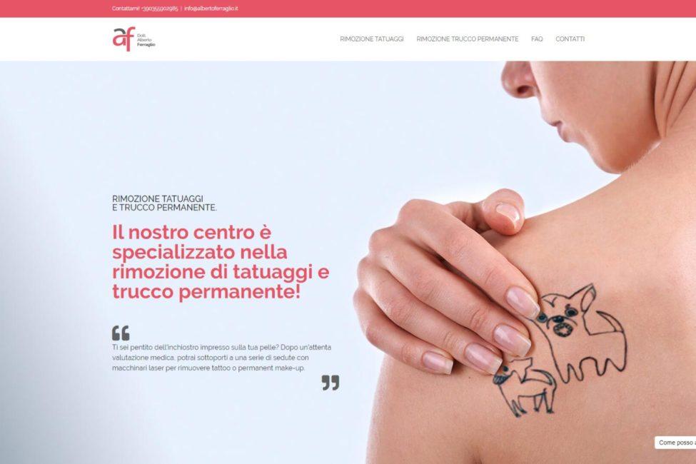 rimozione tatuaggi bergamo Projects